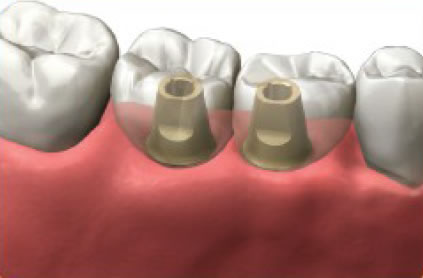 Abutments and final crowns are custom made to match your existing teeth