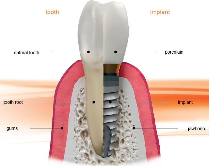 Dental Implants diagram