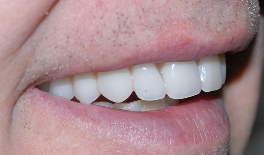 Implant Denture After 1