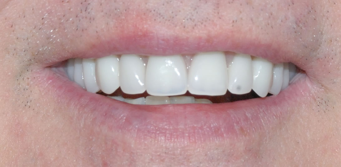Implant Denture After 2