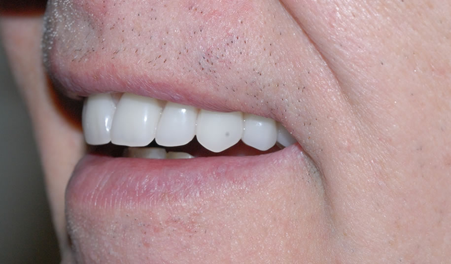 Implant Denture After 3