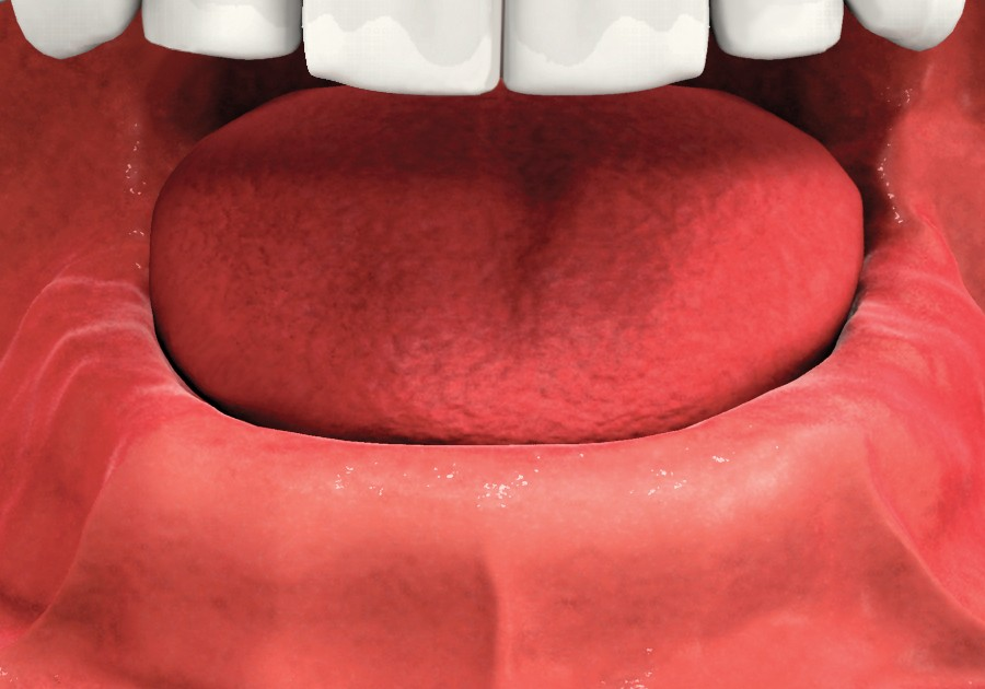 Implant Dentures Missing all Lower Teeth