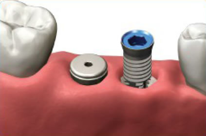 Implants are placed in the bone beneath the gum