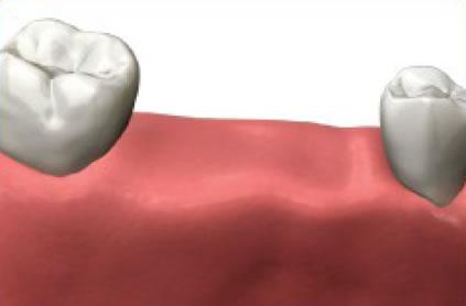 Missing multiple teeth