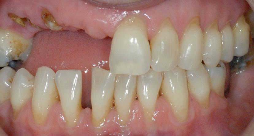 Before Dental Implant Bridge Treatment