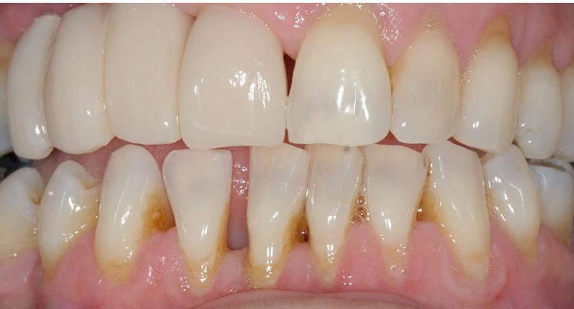After Dental Implant Bridge Treatment
