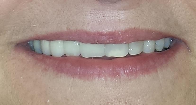 Smile After Dental Implant Bridge Treatment